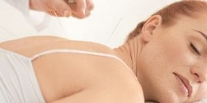 Supporting IVF Procedure with Acupuncture 1